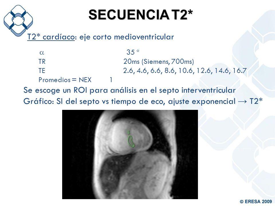 SECUENCIA T2* T2* cardíaco: eje corto medioventricular