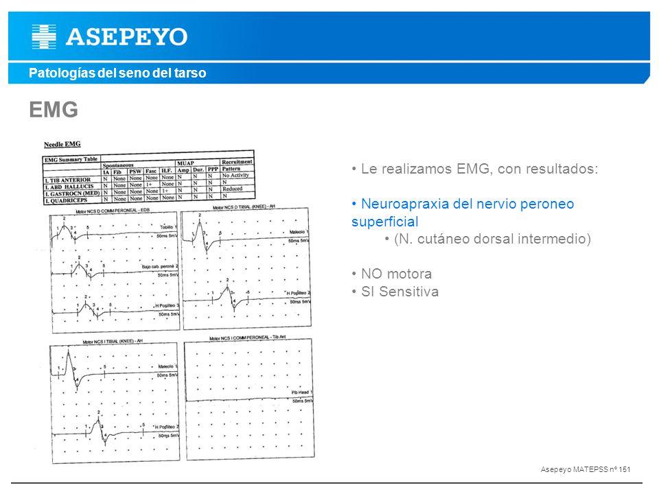EMG Le realizamos EMG, con resultados: