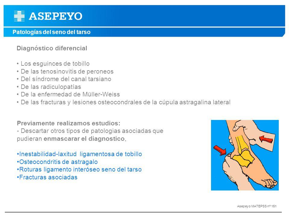 Diagnóstico diferencial Los esguinces de tobillo