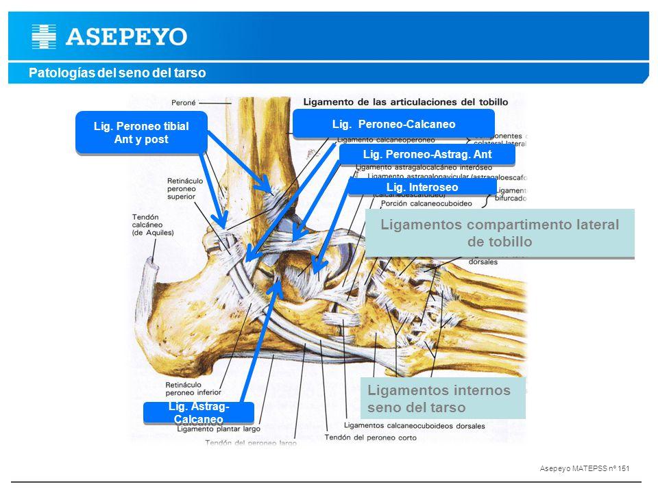 Ligamentos compartimento lateral de tobillo
