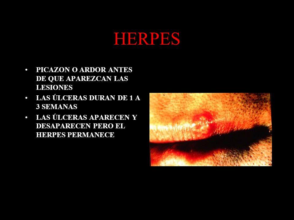 HERPES PICAZON O ARDOR ANTES DE QUE APAREZCAN LAS LESIONES