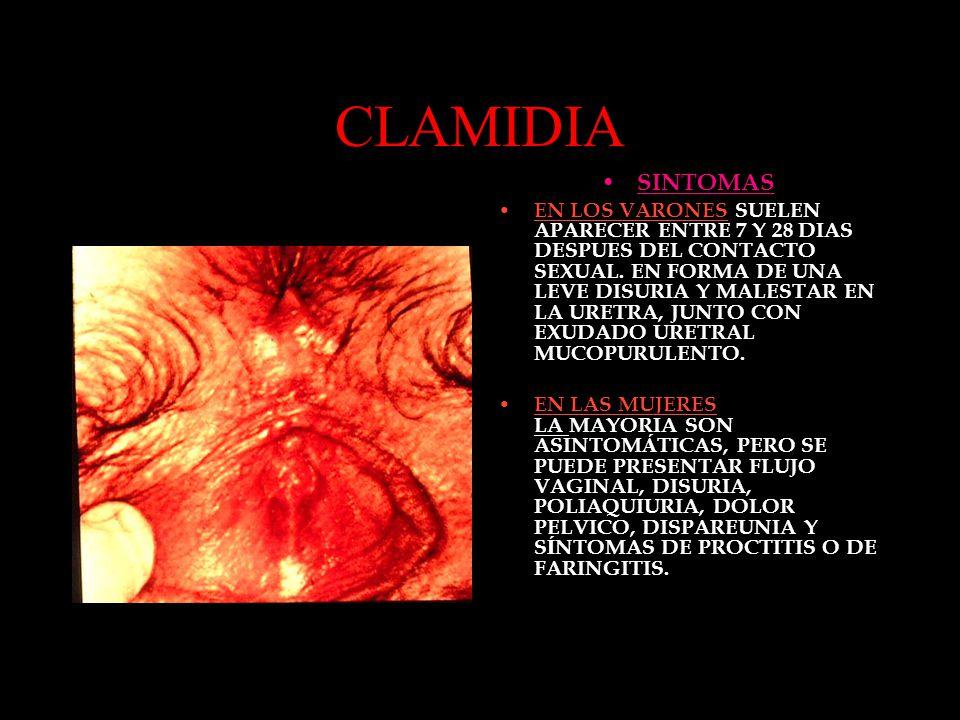 CLAMIDIA SINTOMAS.