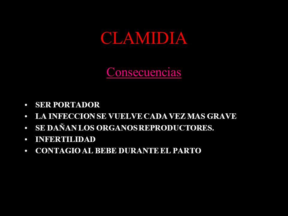 CLAMIDIA Consecuencias SER PORTADOR