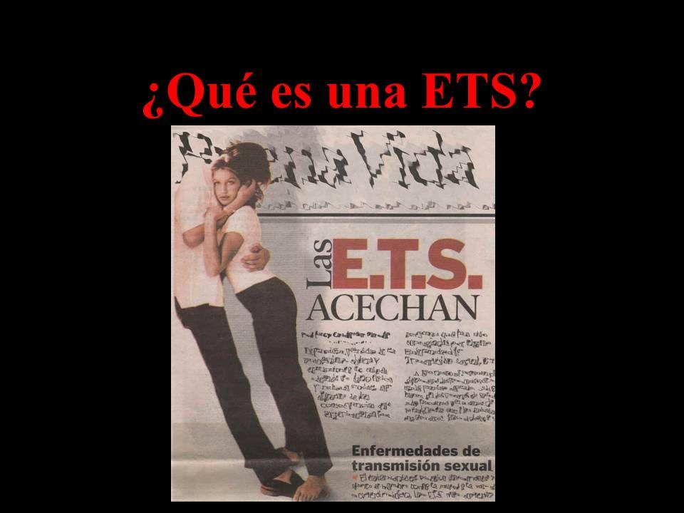 ¿Qué es una ETS
