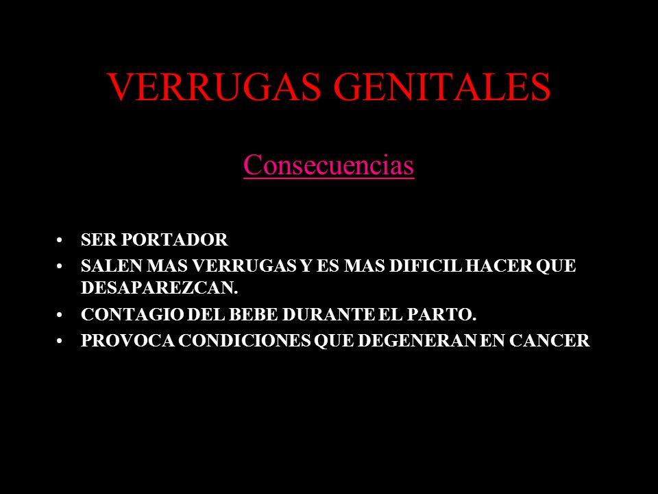 VERRUGAS GENITALES Consecuencias SER PORTADOR