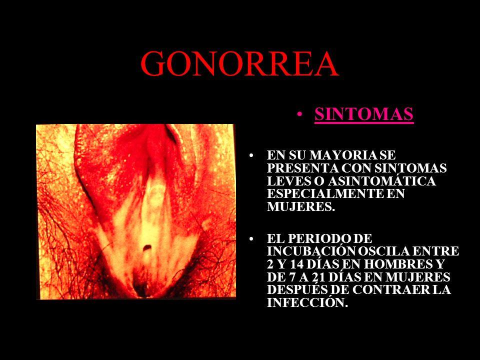 GONORREA SINTOMAS. EN SU MAYORIA SE PRESENTA CON SINTOMAS LEVES O ASINTOMÁTICA ESPECIALMENTE EN MUJERES.