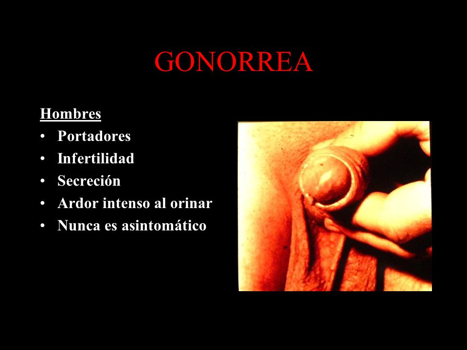 GONORREA Hombres Portadores Infertilidad Secreción