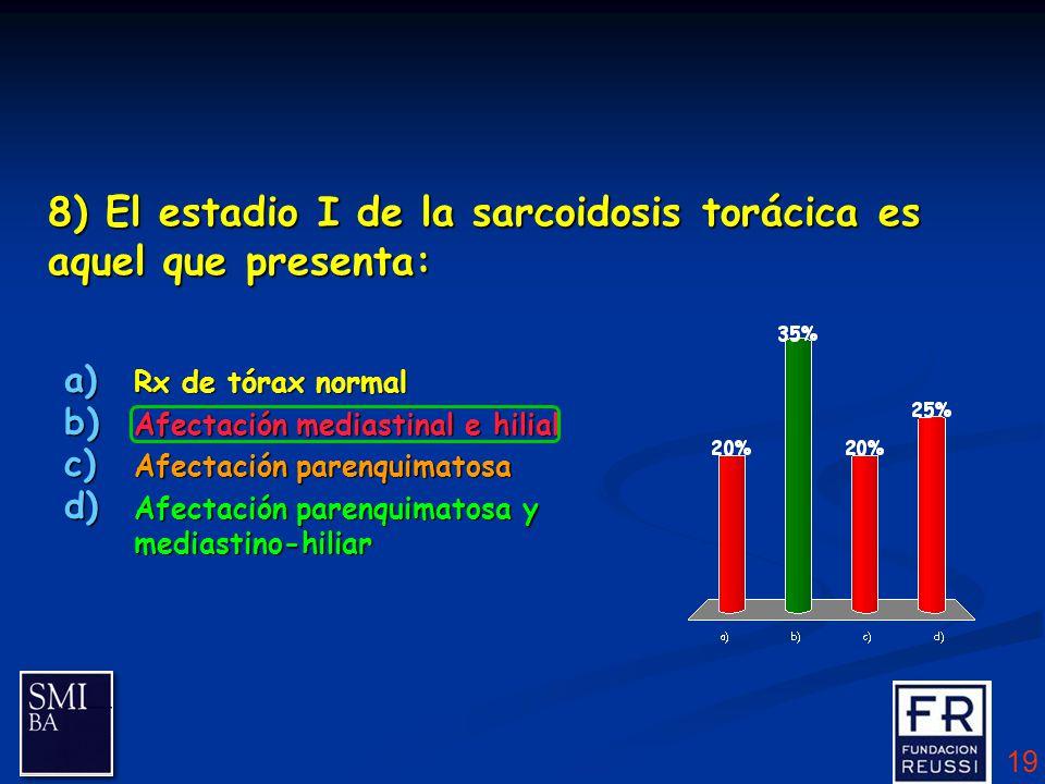 ESTADÍOS RADIOLÓGICOS DE LA SARCOIDOSIS