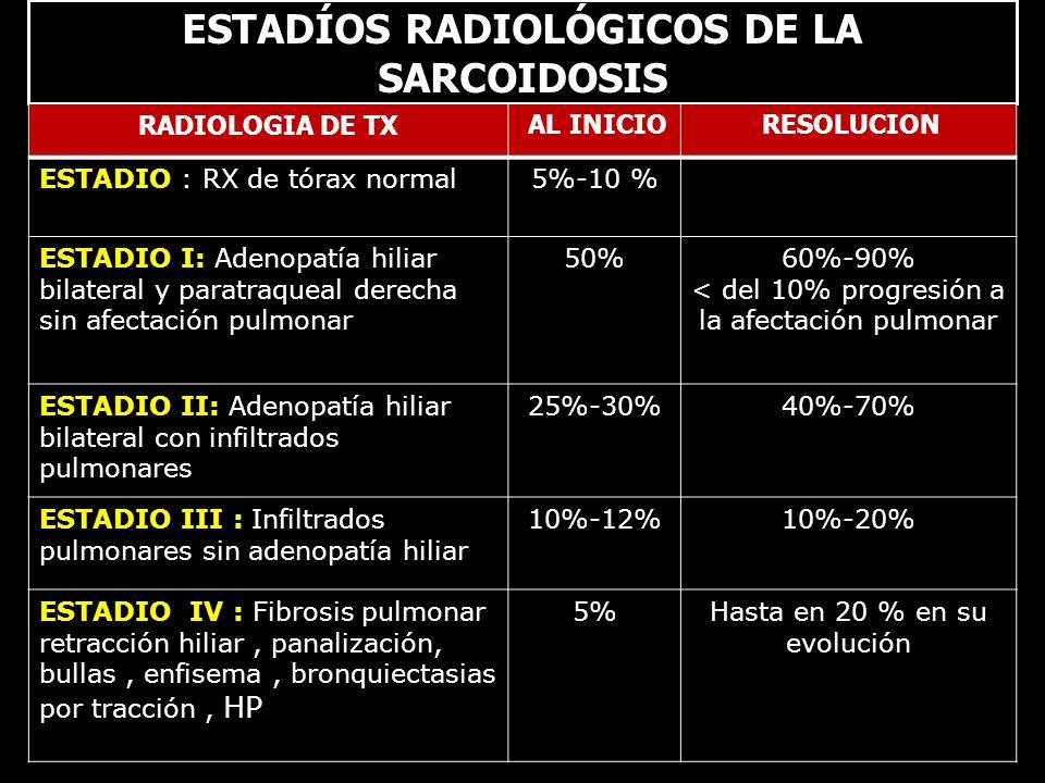 Estadío II : Adenomegalias+ Infiltración pulmonar