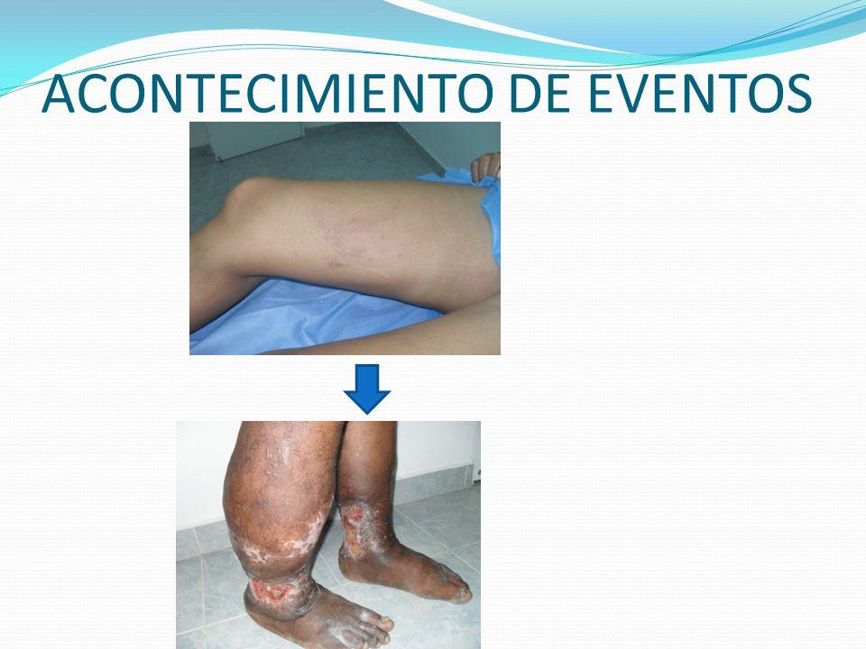 ACONTECIMIENTO DE EVENTOS