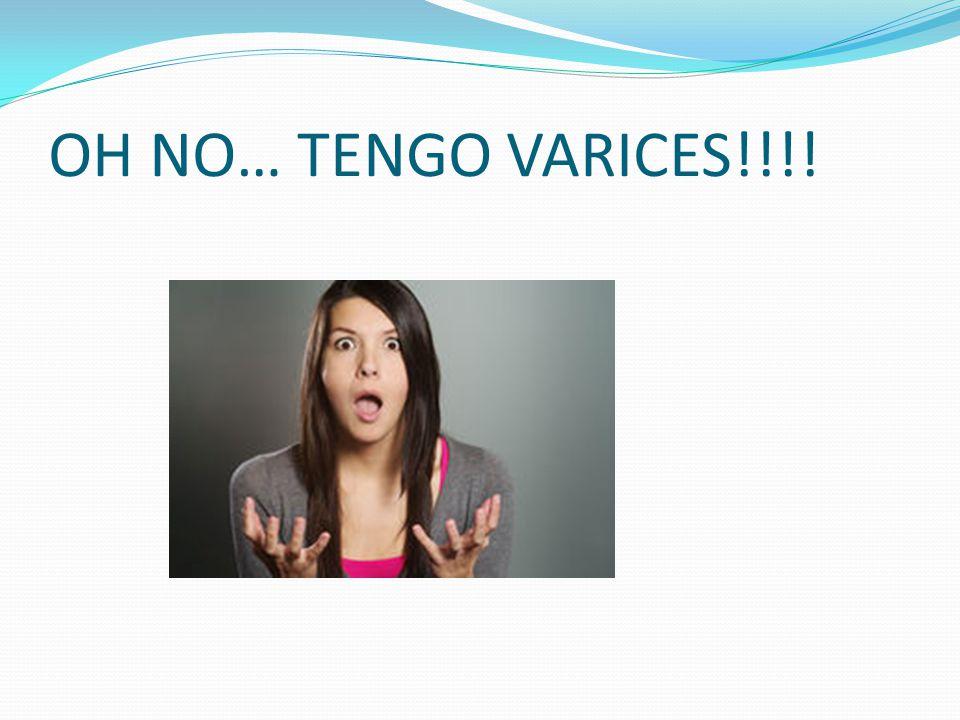 OH NO… TENGO VARICES!!!!