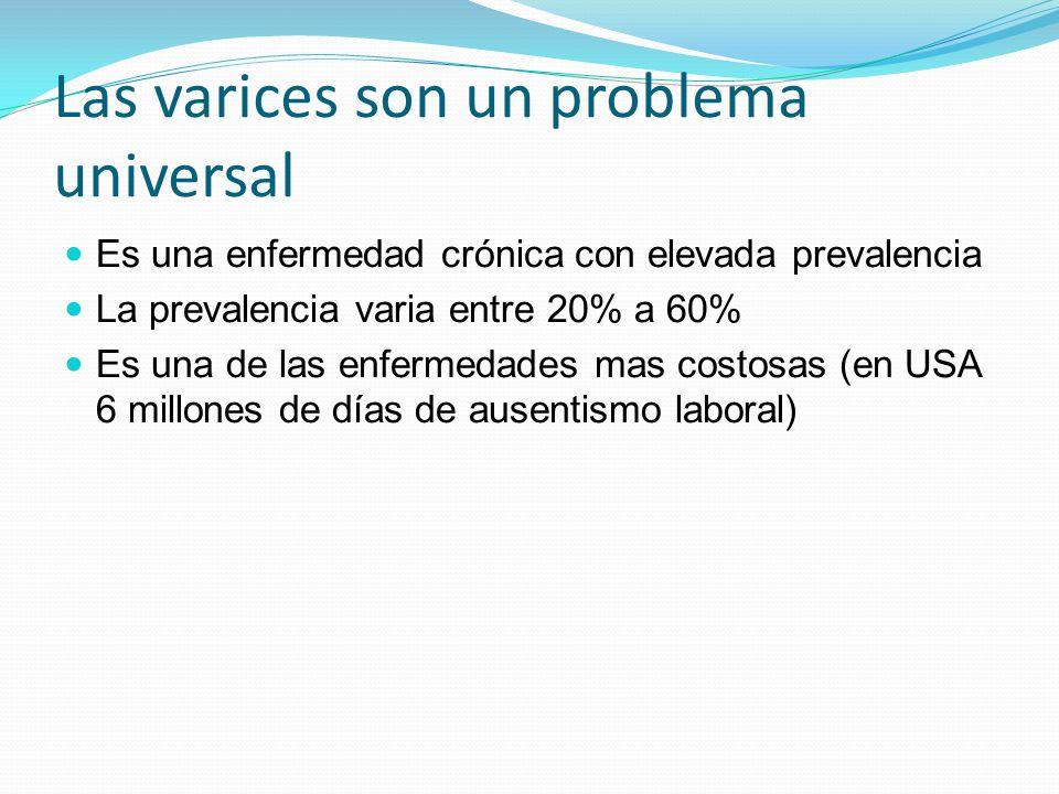 Las varices son un problema universal