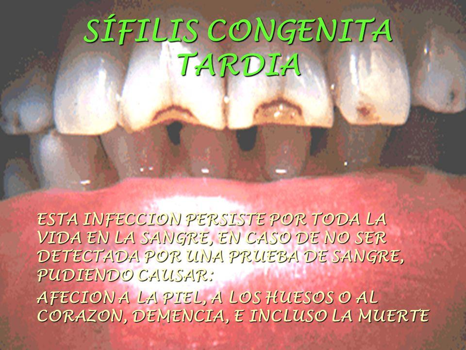 SÍFILIS CONGENITA TARDIA