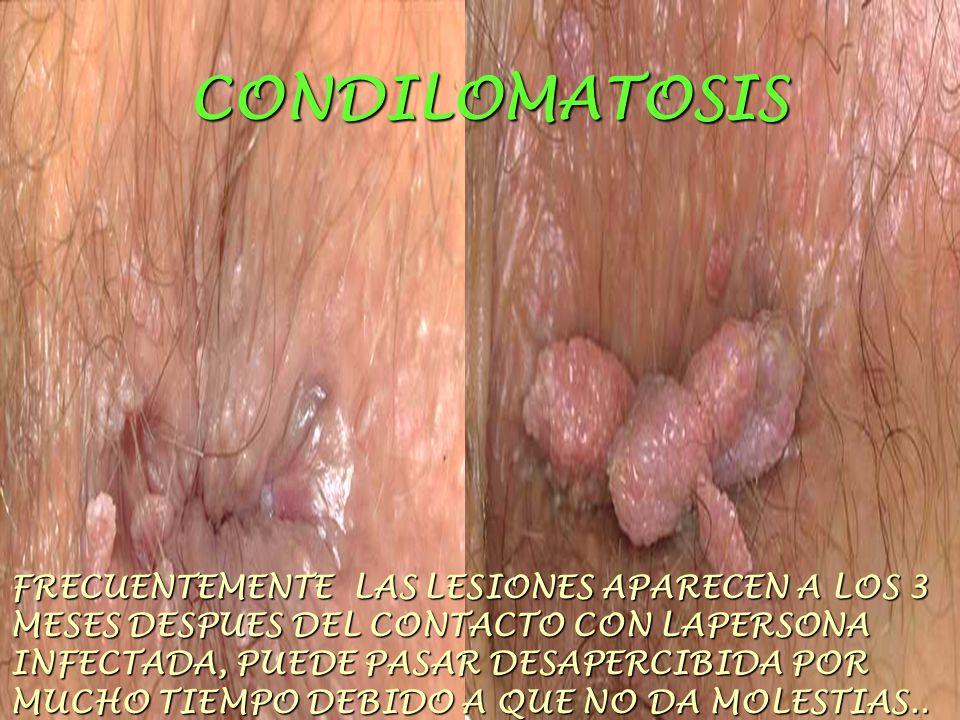 CONDILOMATOSIS