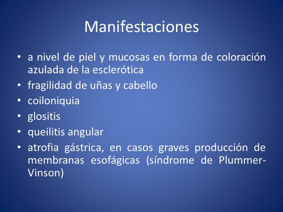 Manifestaciones a nivel de piel y mucosas en forma de coloración azulada de la esclerótica. fragilidad de uñas y cabello.