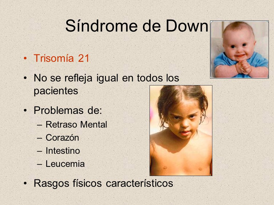 Síndrome de Down Trisomía 21