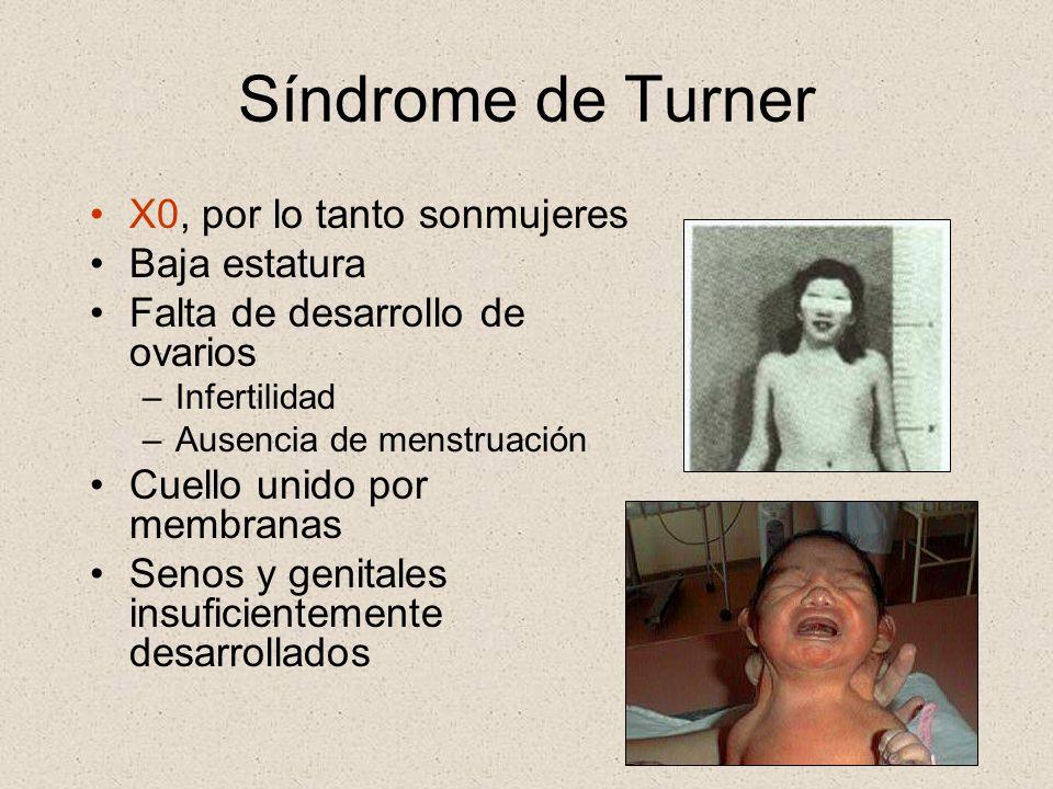 Síndrome de Turner X0, por lo tanto sonmujeres Baja estatura