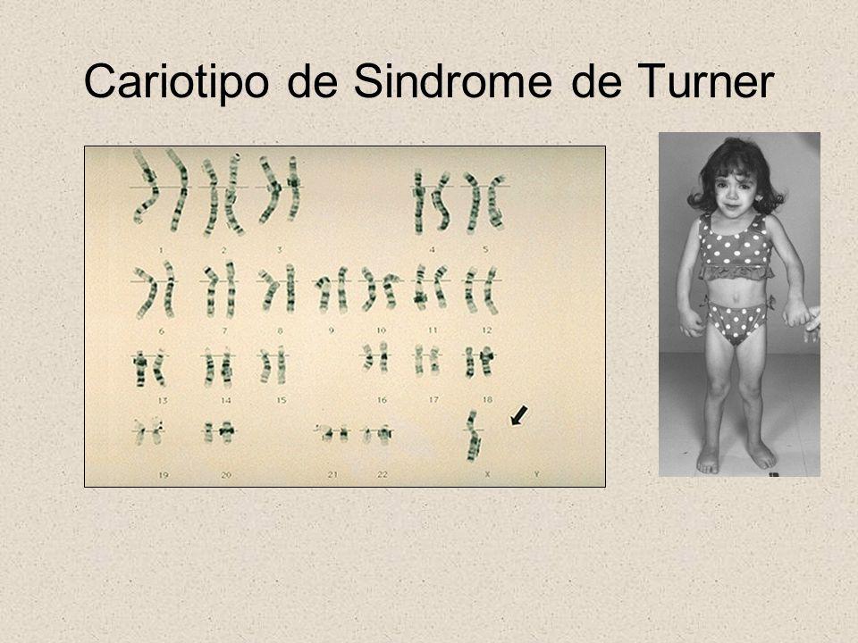 Cariotipo de Sindrome de Turner