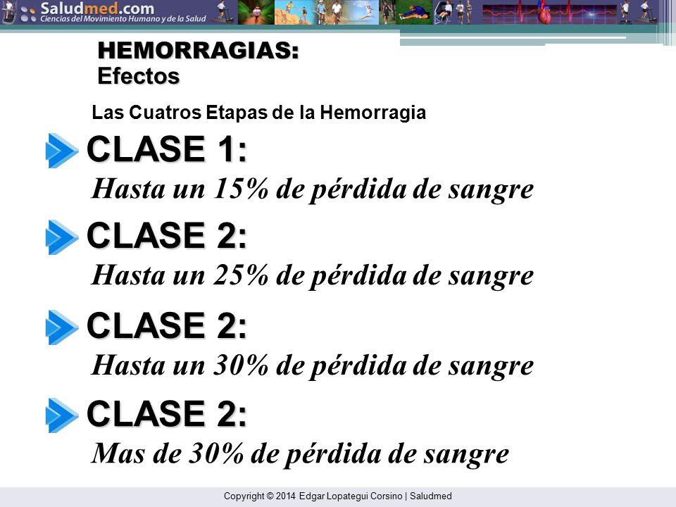 CLASE 1: CLASE 2: CLASE 2: CLASE 2: Hasta un 15% de pérdida de sangre
