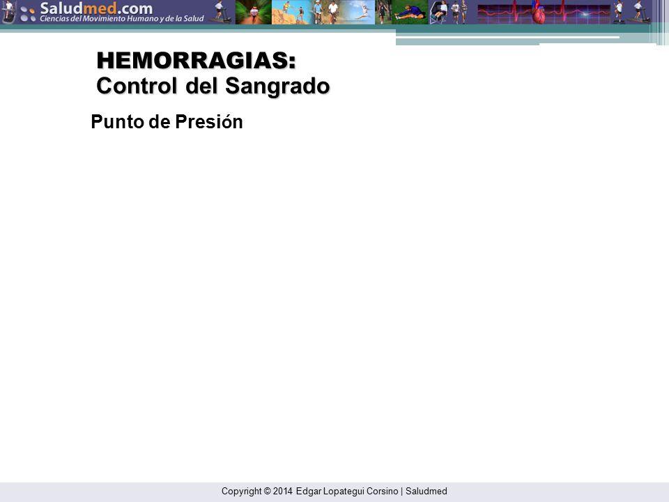 HEMORRAGIAS: Control del Sangrado Punto de Presión