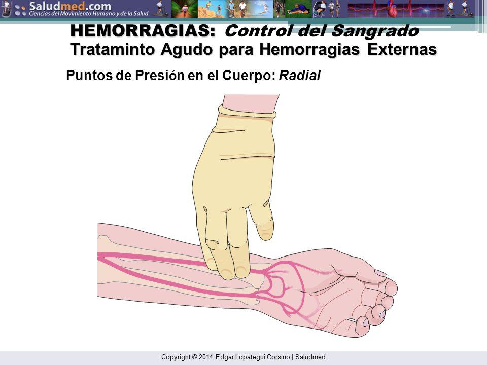 HEMORRAGIAS: Control del Sangrado