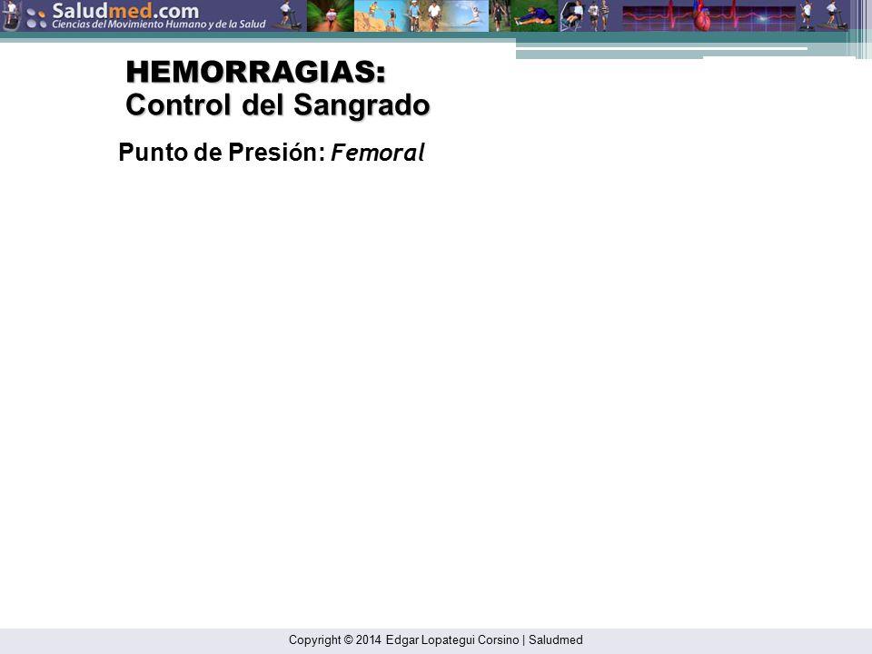 HEMORRAGIAS: Control del Sangrado Punto de Presión: Femoral