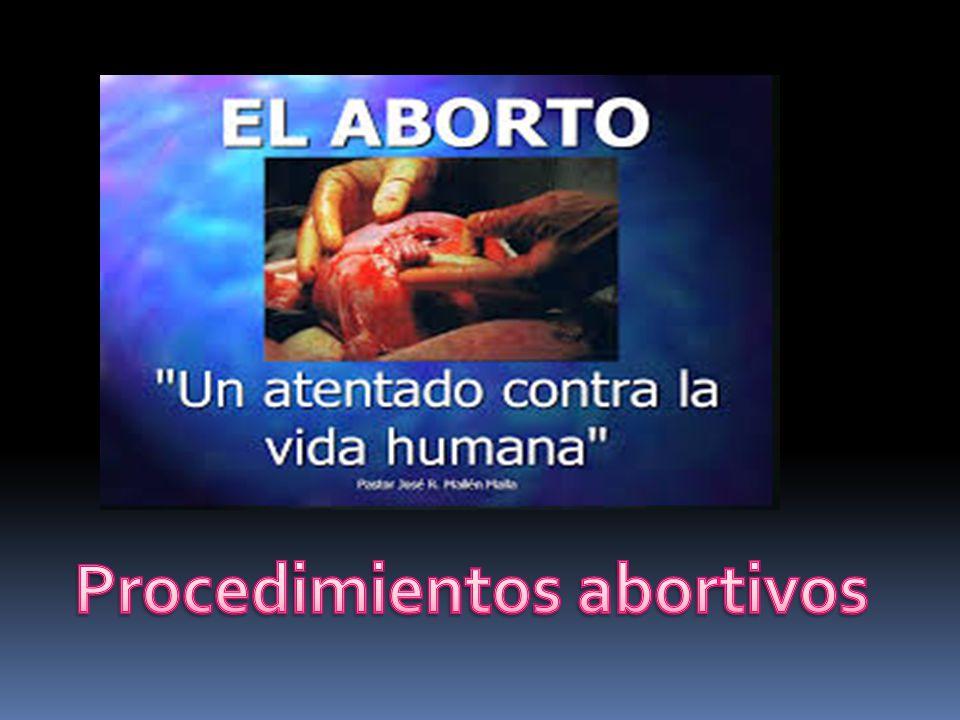 Procedimientos abortivos