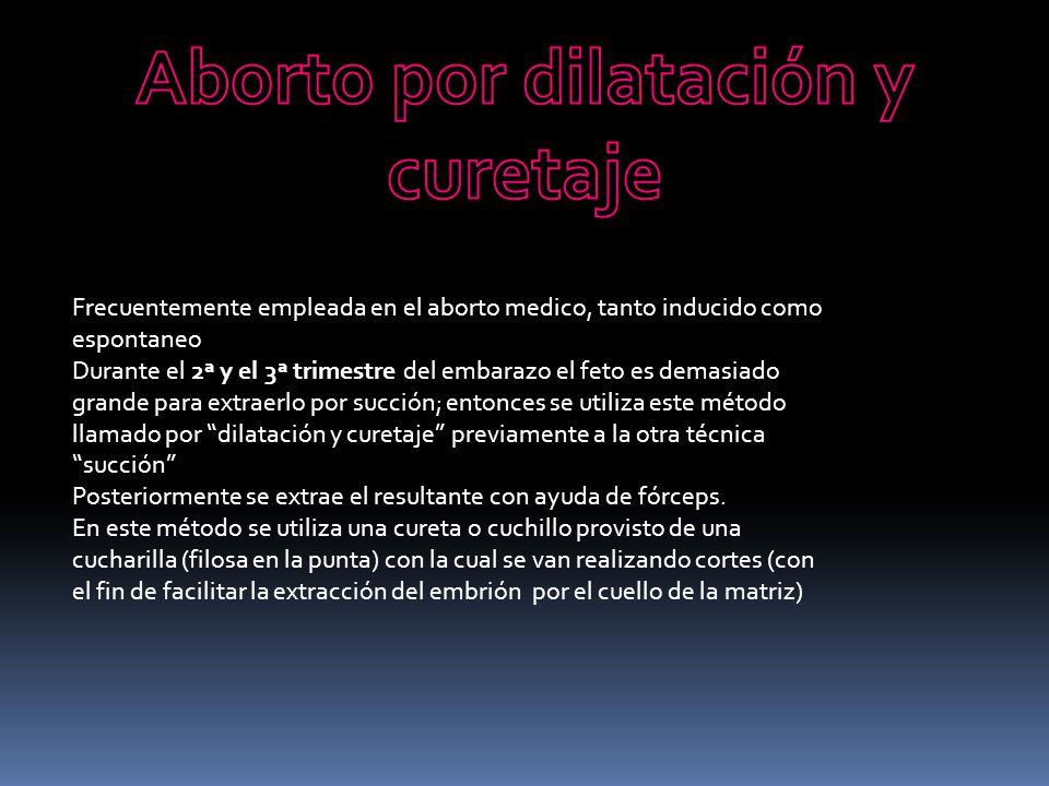 Aborto por dilatación y curetaje