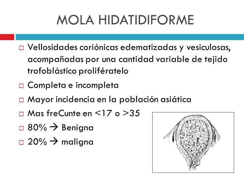 MOLA HIDATIDIFORME Vellosidades coriónicas edematizadas y vesiculosas, acompañadas por una cantidad variable de tejido trofoblástico prolifératelo.