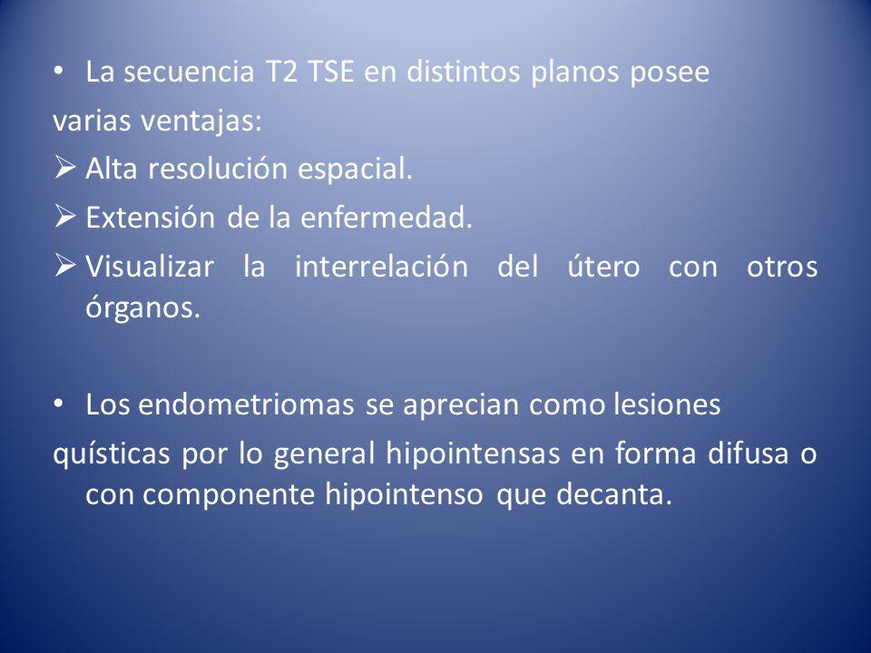 La secuencia T2 TSE en distintos planos posee