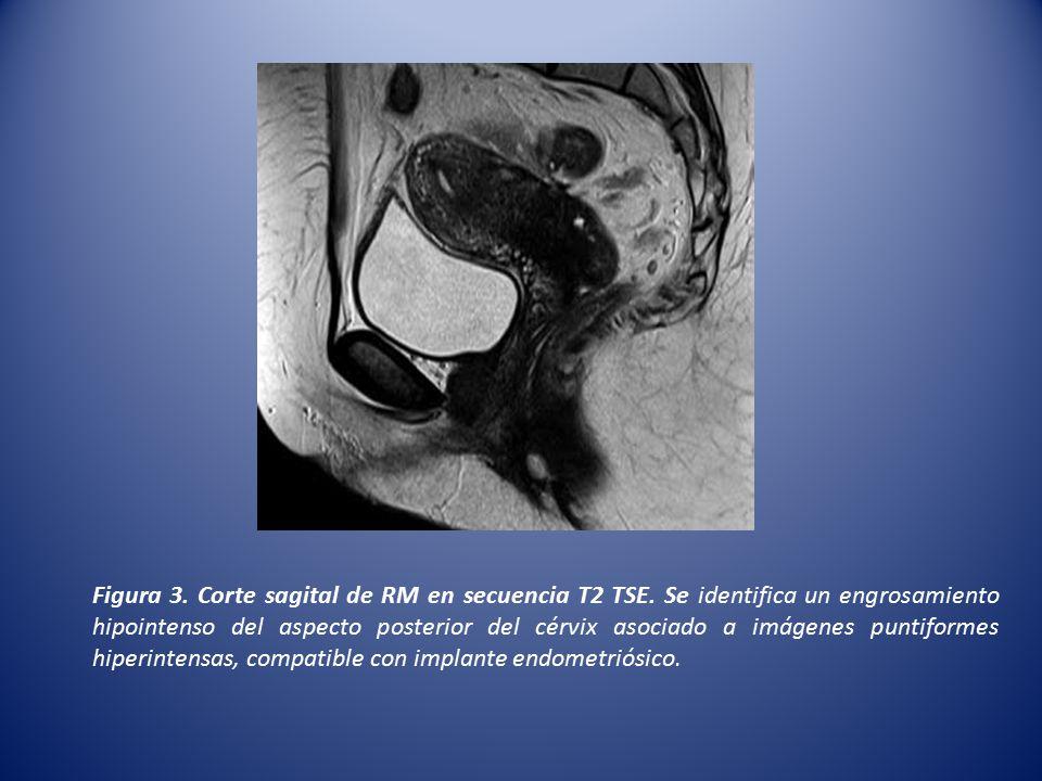 Figura 3. Corte sagital de RM en secuencia T2 TSE