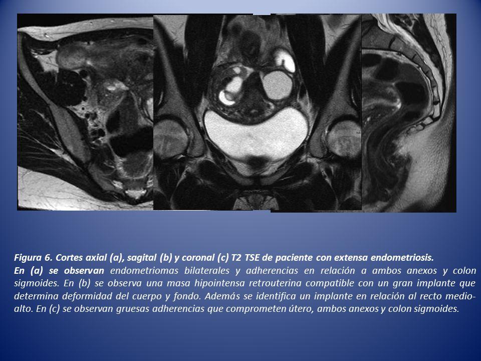 Figura 6. Cortes axial (a), sagital (b) y coronal (c) T2 TSE de paciente con extensa endometriosis.