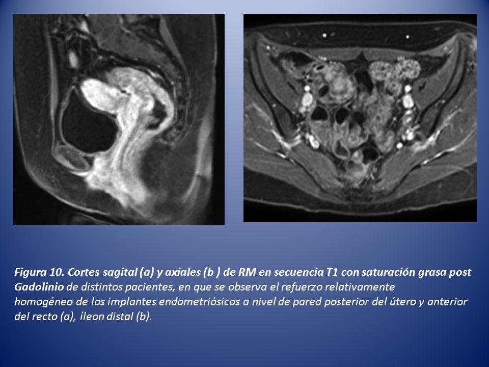 Figura 10. Cortes sagital (a) y axiales (b ) de RM en secuencia T1 con saturación grasa post Gadolinio de distintos pacientes, en que se observa el refuerzo relativamente