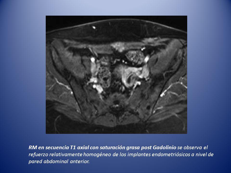 RM en secuencia T1 axial con saturación grasa post Gadolinio se observa el refuerzo relativamente homogéneo de los implantes endometriósicos a nivel de pared abdominal anterior.