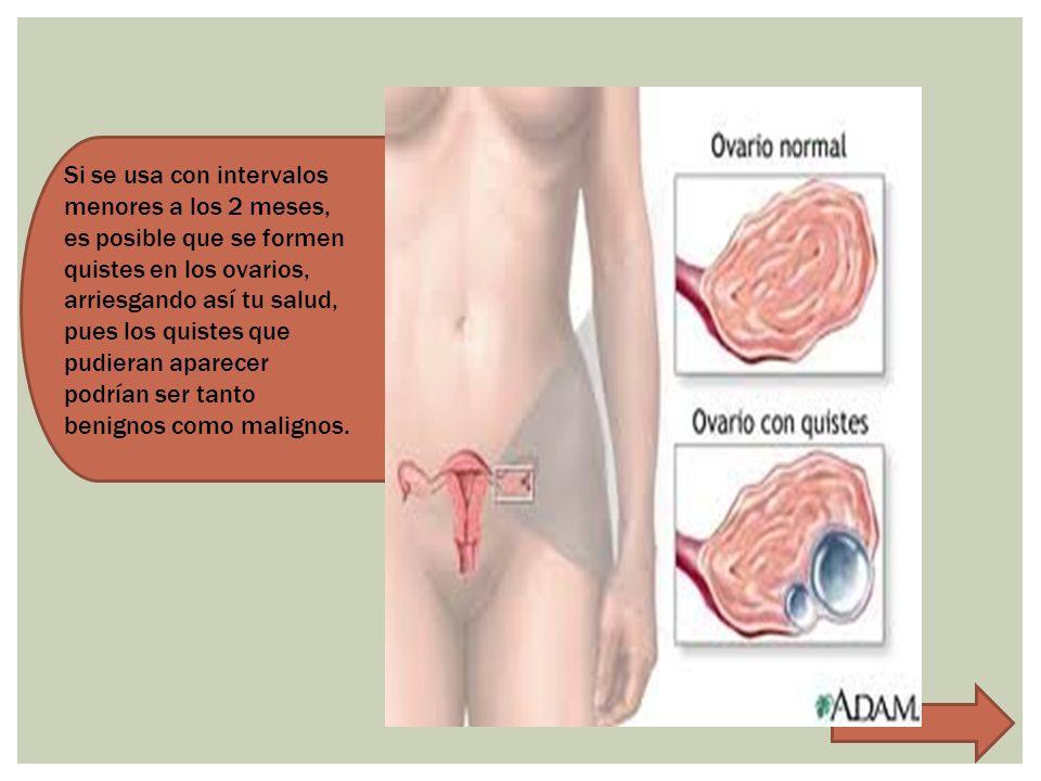 Si se usa con intervalos menores a los 2 meses, es posible que se formen quistes en los ovarios, arriesgando así tu salud, pues los quistes que pudieran aparecer podrían ser tanto benignos como malignos.