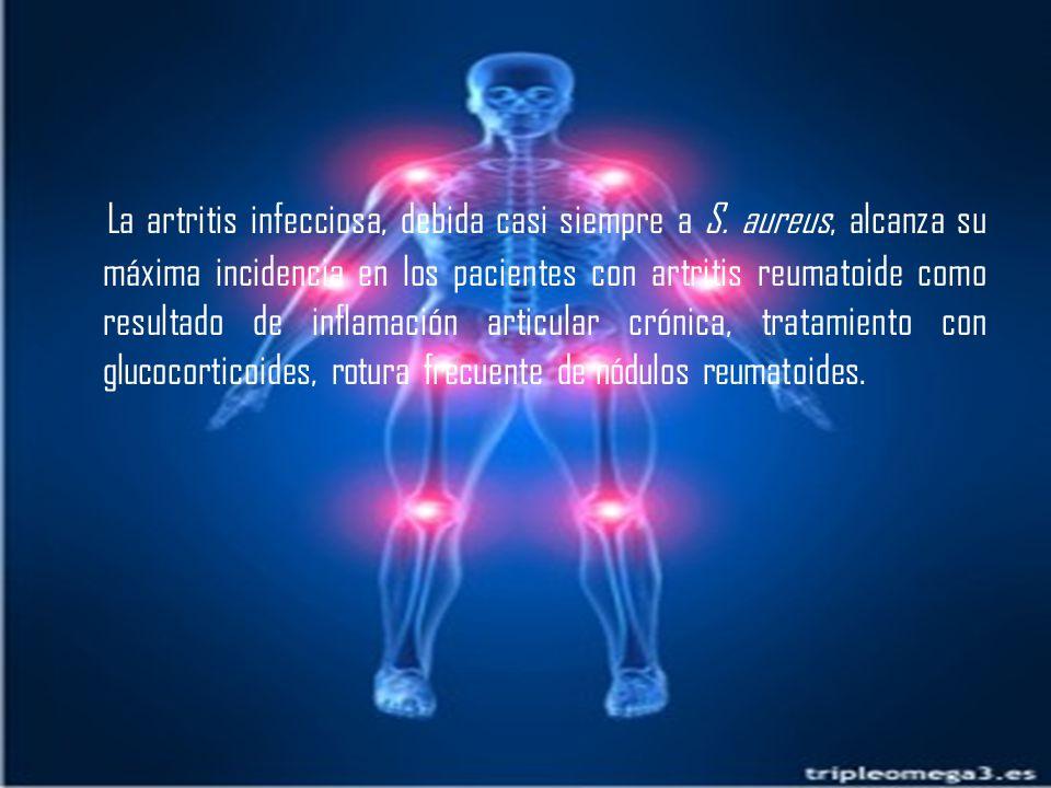 La artritis infecciosa, debida casi siempre a S