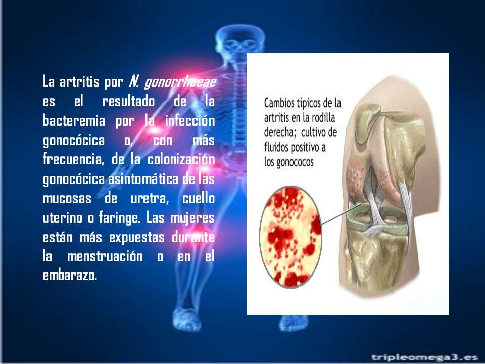 La artritis por N.