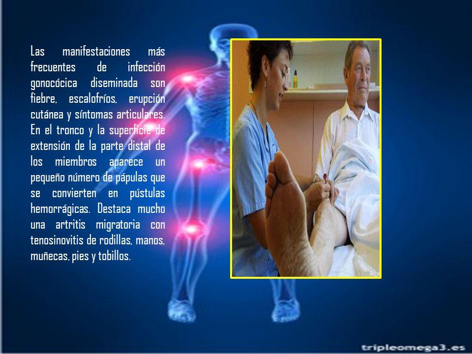 Las manifestaciones más frecuentes de infección gonocócica diseminada son fiebre, escalofríos, erupción cutánea y síntomas articulares.