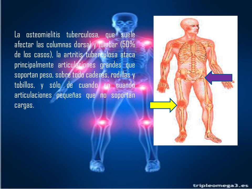 La osteomielitis tuberculosa, que suele afectar las columnas dorsal y lumbar (50% de los casos), la artritis tuberculosa ataca principalmente articulaciones grandes que soportan peso, sobre todo caderas, rodillas y tobillos, y sólo de cuando en cuando articulaciones pequeñas que no soportan cargas.