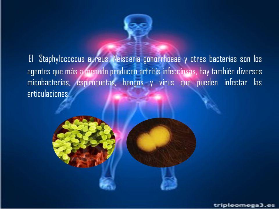 El Staphylococcus aureus, Neisseria gonorrhoeae y otras bacterias son los agentes que más a menudo producen artritis infecciosas, hay también diversas micobacterias, espiroquetas, hongos y virus que pueden infectar las articulaciones.