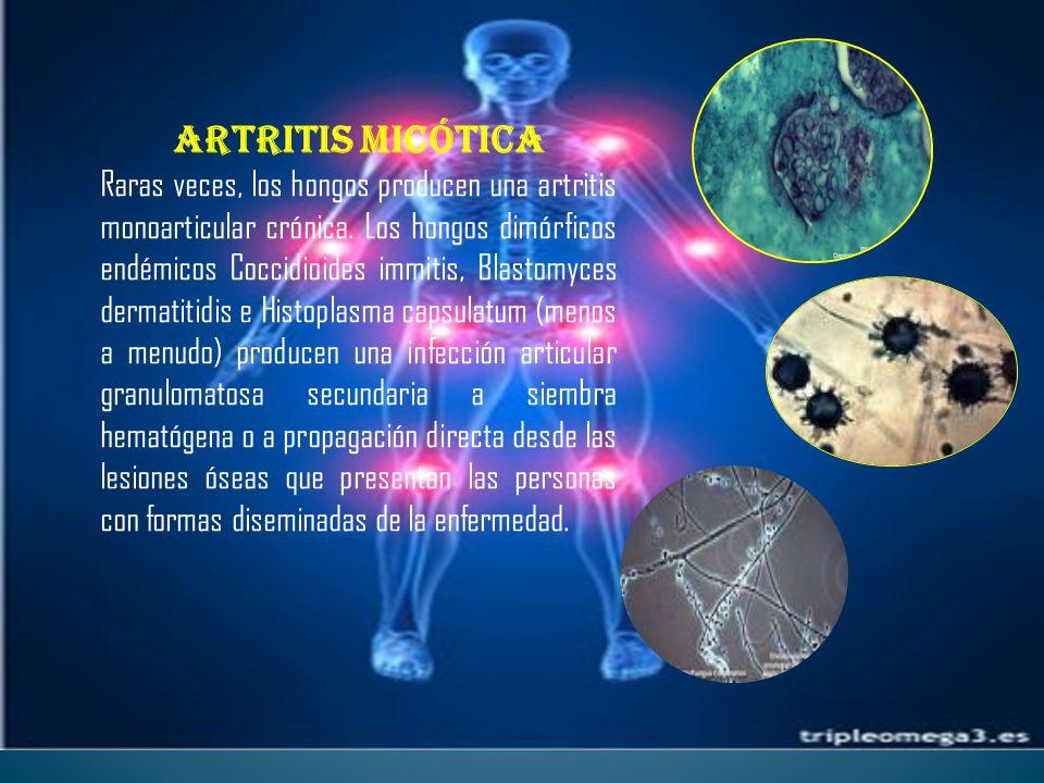 Artritis micótica