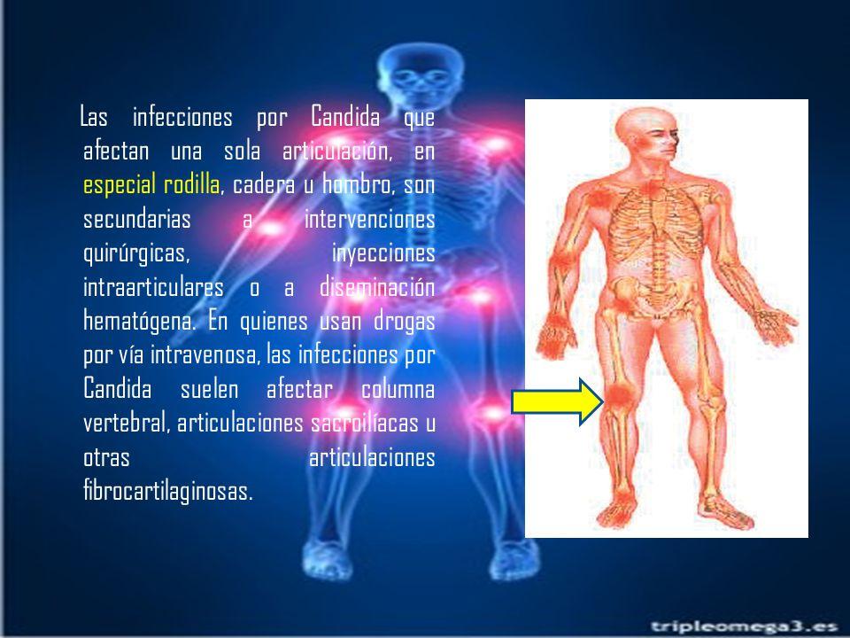 Las infecciones por Candida que afectan una sola articulación, en especial rodilla, cadera u hombro, son secundarias a intervenciones quirúrgicas, inyecciones intraarticulares o a diseminación hematógena.