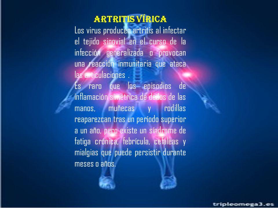 Artritis vírica