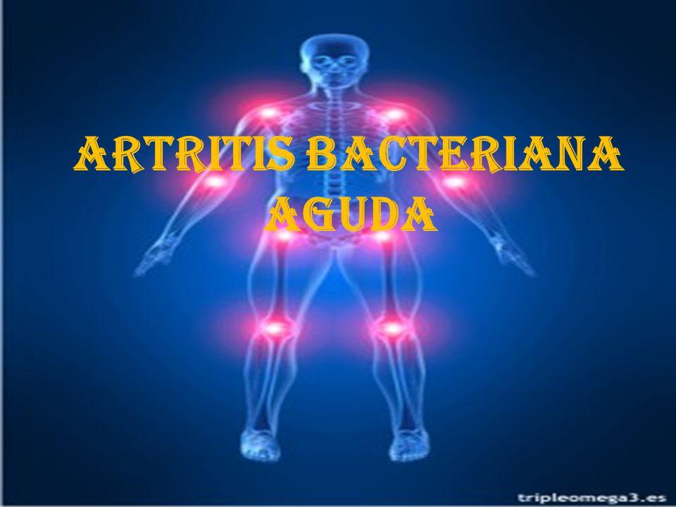 Artritis bacteriana aguda