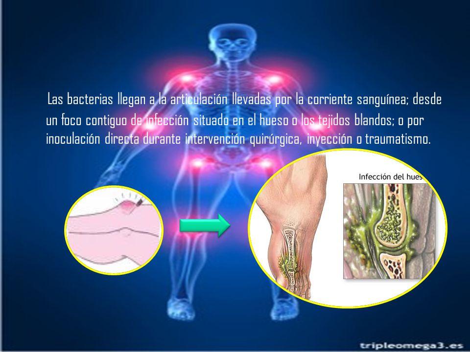 Las bacterias llegan a la articulación llevadas por la corriente sanguínea; desde un foco contiguo de infección situado en el hueso o los tejidos blandos; o por inoculación directa durante intervención quirúrgica, inyección o traumatismo.