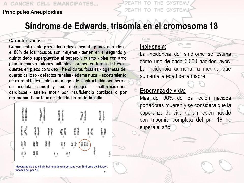 Síndrome de Edwards, trisomía en el cromosoma 18