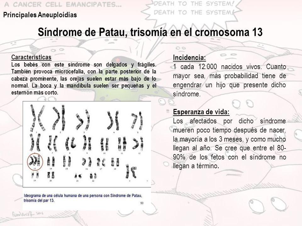 Síndrome de Patau, trisomía en el cromosoma 13