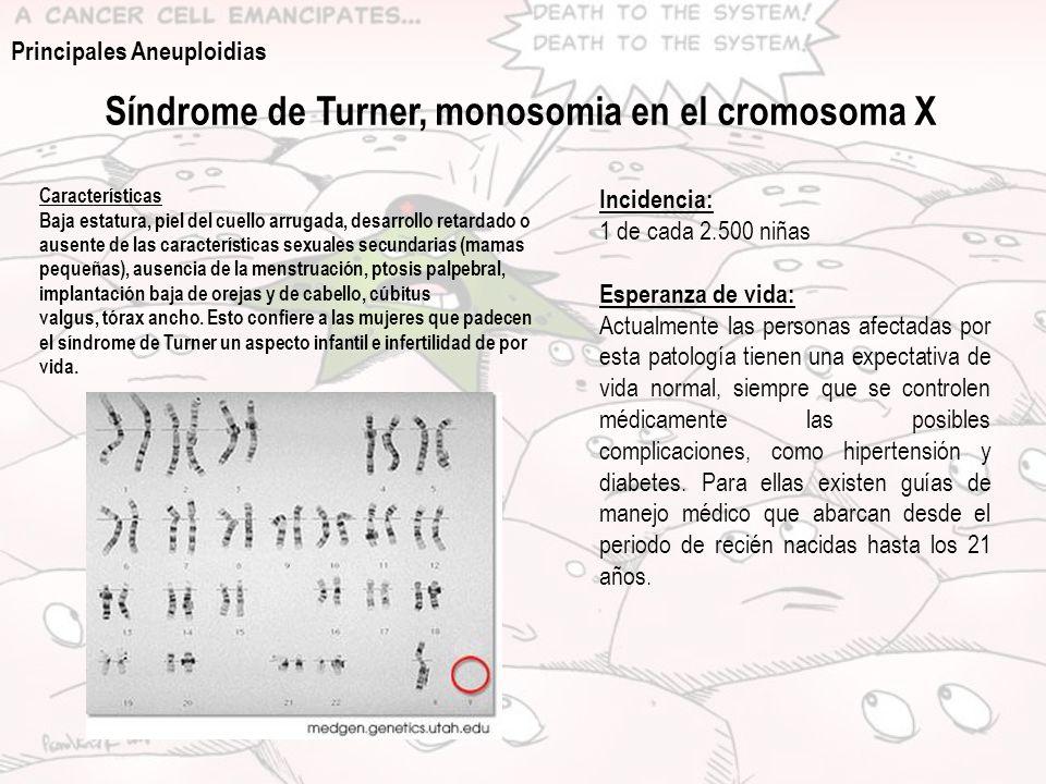 Síndrome de Turner, monosomia en el cromosoma X