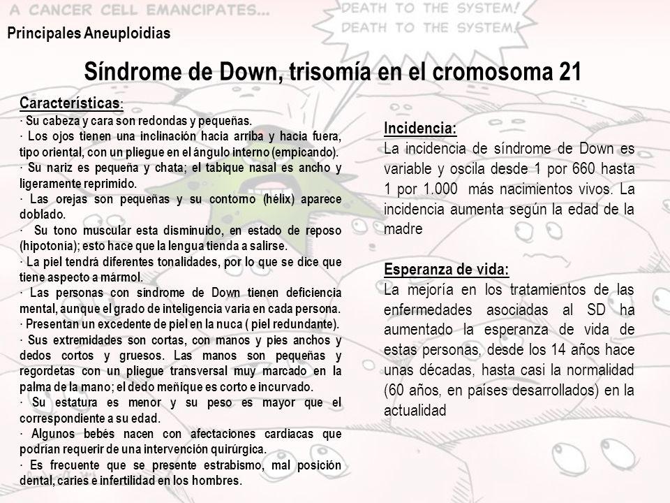 Síndrome de Down, trisomía en el cromosoma 21