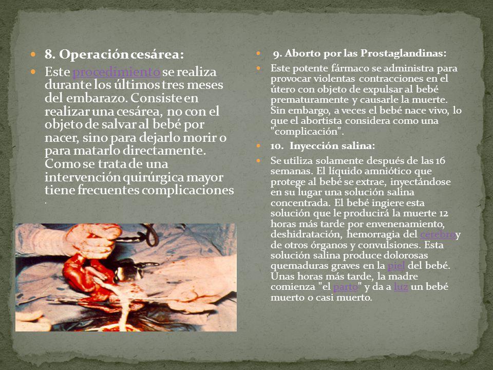 8. Operación cesárea:
